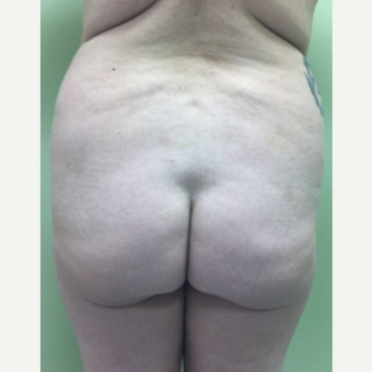 18-24 year old woman treated with Brazilian Butt Lift before 3022877