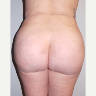 18-24 year old woman treated with Brazilian Butt Lift after 3022877