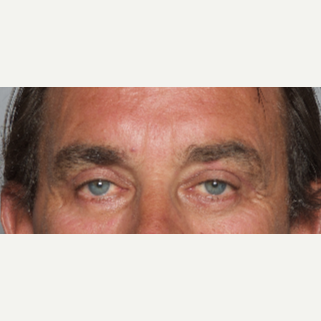 55-64 year old man treated with Eyelid Surgery after 2984200