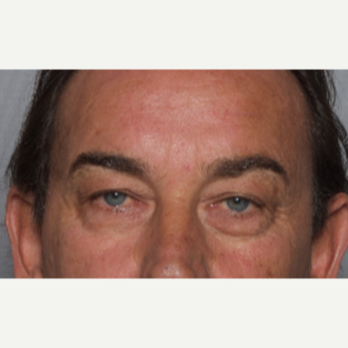 55-64 year old man treated with Eyelid Surgery before 2984200