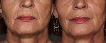 63 Year Old Female treated with Juvederm to her lips before 1018039