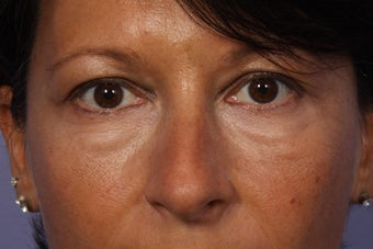 Lower Eyelid Surgery before 941139
