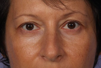 Lower Eyelid Surgery after 941139