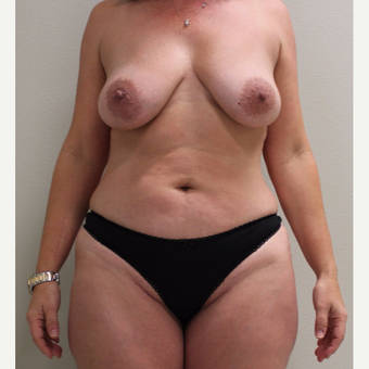 45-54 year old woman treated with Mommy Makeover before 2743027