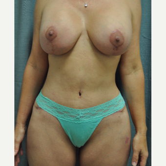 45-54 year old woman treated with Mommy Makeover after 2743027