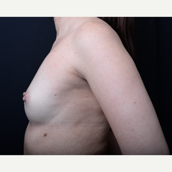 35-44 year old woman treated with Breast Augmentation before 3367167