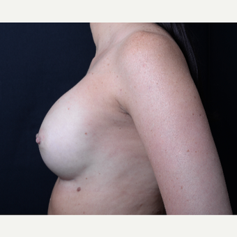 35-44 year old woman treated with Breast Augmentation after 3367167