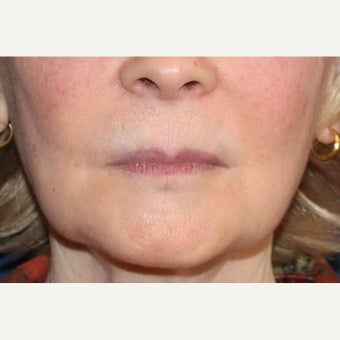 Lip Augmentation with Artefill (now called Bellafill).   after 1631314