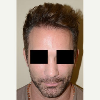 FUE Hair Transplant - Male Patient  after 1629680