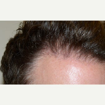 FUE Hair Transplant - Male Patient  1629680