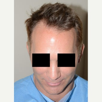 FUE Hair Transplant - Male Patient  before 1629680