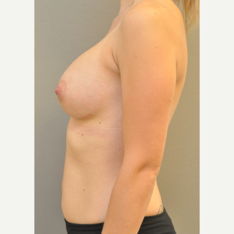 18-24 year old woman treated with Breast Augmentation after 3842577