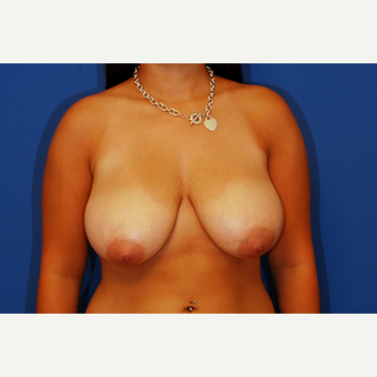 18-24 year old woman treated with Breast Reduction before 3619274