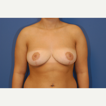 18-24 year old woman treated with Breast Reduction after 3619274
