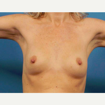 35-44 year old woman treated with Breast Implants before 3786974