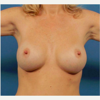 35-44 year old woman treated with Breast Implants after 3786974