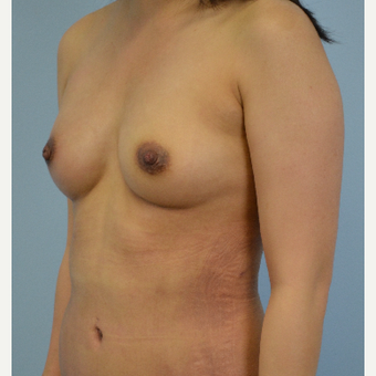 18-24 year old woman treated with Breast Fat Transfer after 3432067