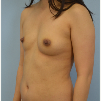 18-24 year old woman treated with Breast Fat Transfer before 3432067