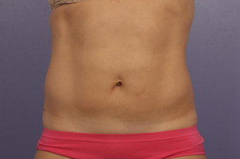 CoolSculpting after 1599508