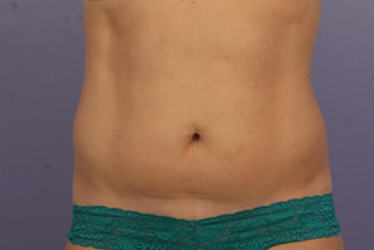 CoolSculpting before 1599508