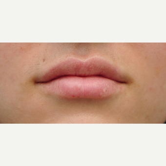 25-34 year old woman treated with Lip Augmentation after 3565011
