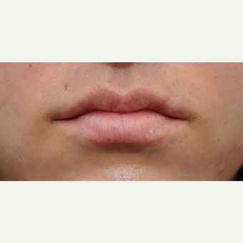 25-34 year old woman treated with Lip Augmentation before 3565011