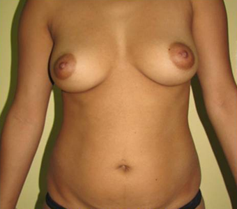 Breast Augmentation Plus Tummy Tuck before 1381354