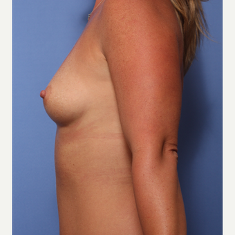 35-44 year old woman treated with Breast Augmentation before 3782940
