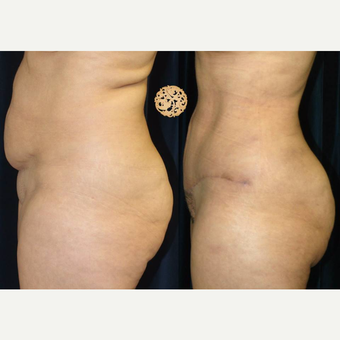 45-54 year old woman treated with Tummy Tuck after 3099724
