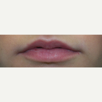 25-34 year old woman treated with Restylane Silk before 3309292