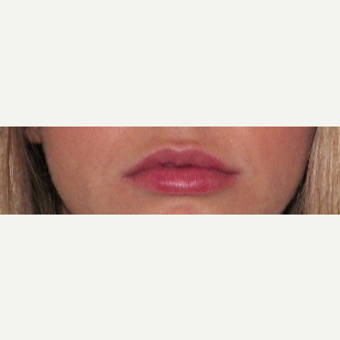 25-34 year old woman treated with Restylane Silk after 3309292