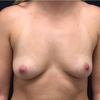 25-34 year old woman treated with Breast Augmentation before 3494015