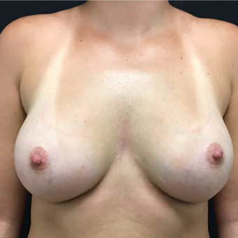 25-34 year old woman treated with Breast Augmentation after 3494015