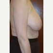 45-54 year old woman treated with Breast Reduction before 3093388