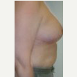45-54 year old woman treated with Breast Reduction after 3093388
