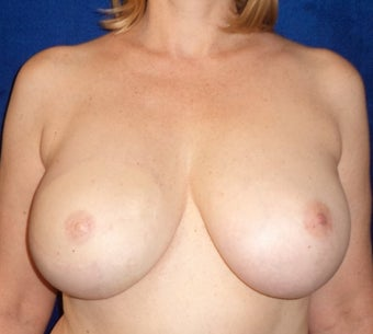 42 year old Female treated for right breast cancer with Mastectomy - reconstruction with TRAM Flap.