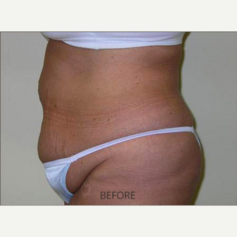 25-34 year old woman treated with Tummy Tuck before 3589558