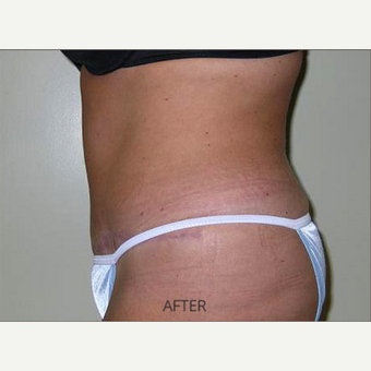 25-34 year old woman treated with Tummy Tuck after 3589558