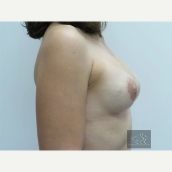 35-44 year old woman treated with Breast Lift with Implants after 3094332