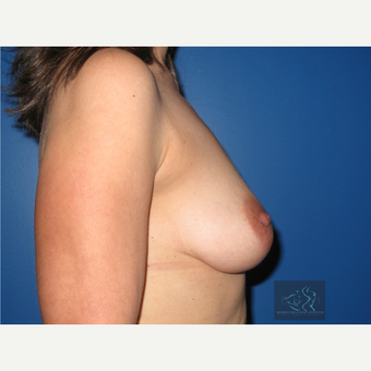 35-44 year old woman treated with Breast Lift with Implants before 3094332