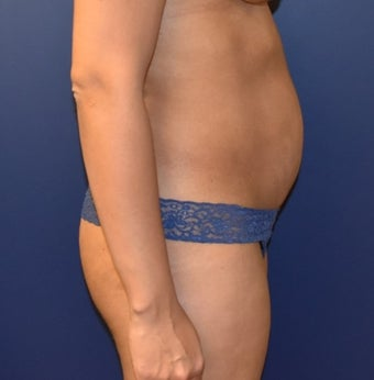 35-44 year old woman treated with Liposuction before 3348731