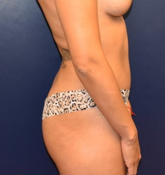 35-44 year old woman treated with Liposuction after 3348731