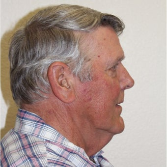 65-74 year old man treated with Neck Lift