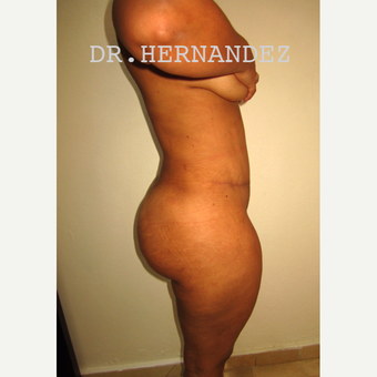 35-44 year old woman treated with Tummy Tuck after 3529067
