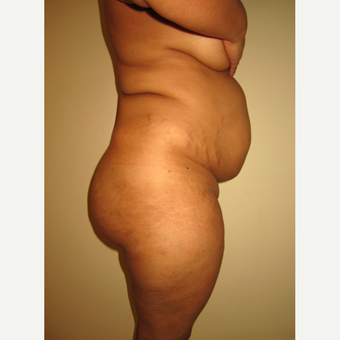 35-44 year old woman treated with Tummy Tuck before 3529067