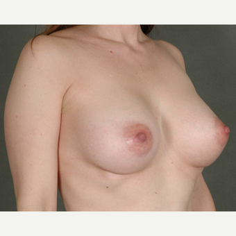 25-34 year old woman treated with Breast Augmentation after 3219456