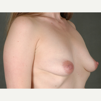 25-34 year old woman treated with Breast Augmentation before 3219456