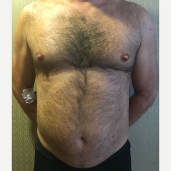 35-44 year old man treated with Liposuction before 3818040