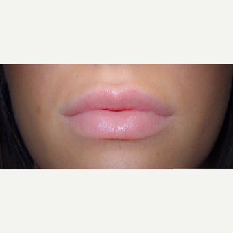 25-34 year old woman treated with Lip Augmentation after 3522475