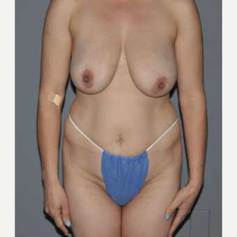 35-44 year old woman treated with Breast Lift before 3412888